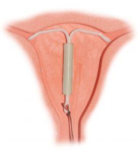 mirena_intrauterine_system